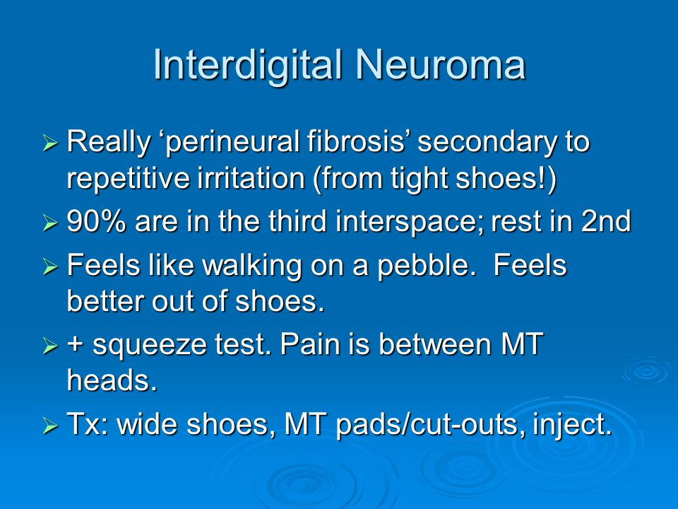 Interdigital Neuroma Really 'perineural fibrosis' secondary to repetitive irritation (from tight shoes!)