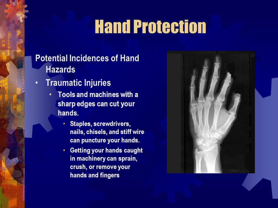 Hand Protection Potential Incidences of Hand Hazards