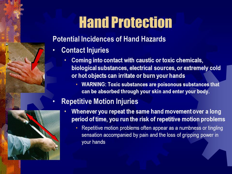 Hand Protection Potential Incidences of Hand Hazards Contact Injuries