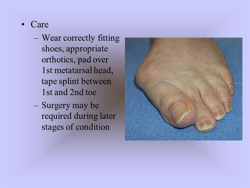 Care Wear correctly fitting shoes, appropriate orthotics, pad over 1st metatarsal head, tape splint between 1st and 2nd toe.