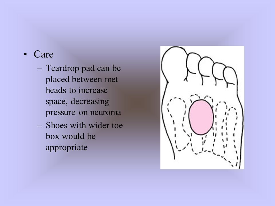 Care Teardrop pad can be placed between met heads to increase space, decreasing pressure on neuroma.
