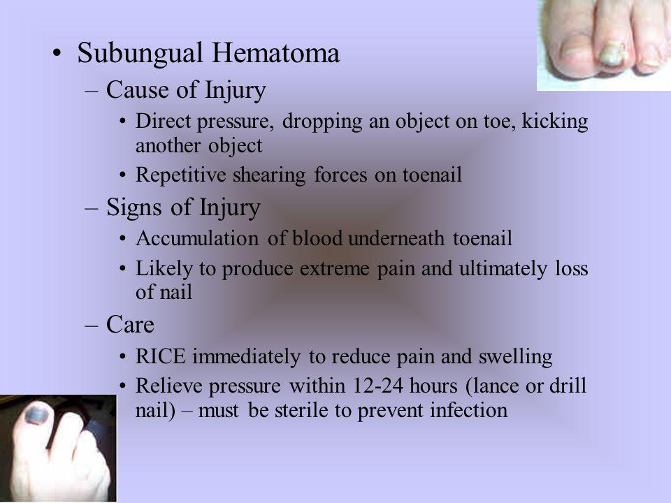 Subungual Hematoma Cause of Injury Signs of Injury Care
