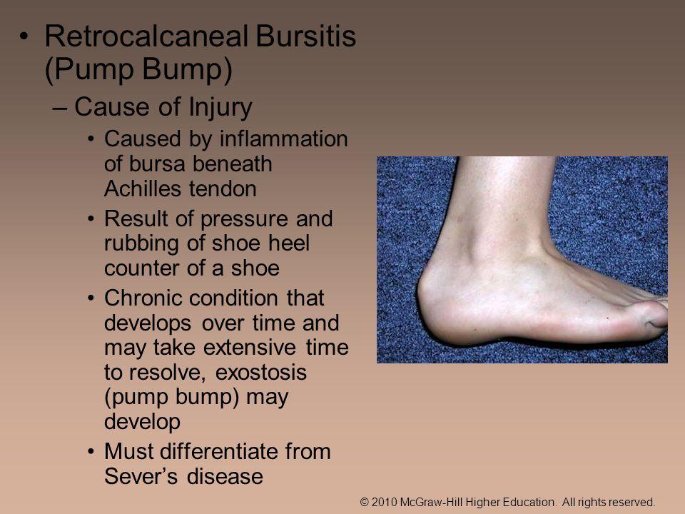 Retrocalcaneal Bursitis (Pump Bump)