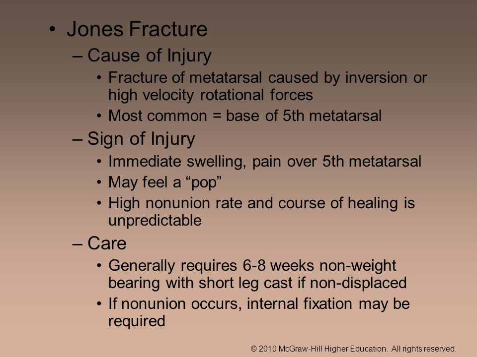Jones Fracture Cause of Injury Sign of Injury Care