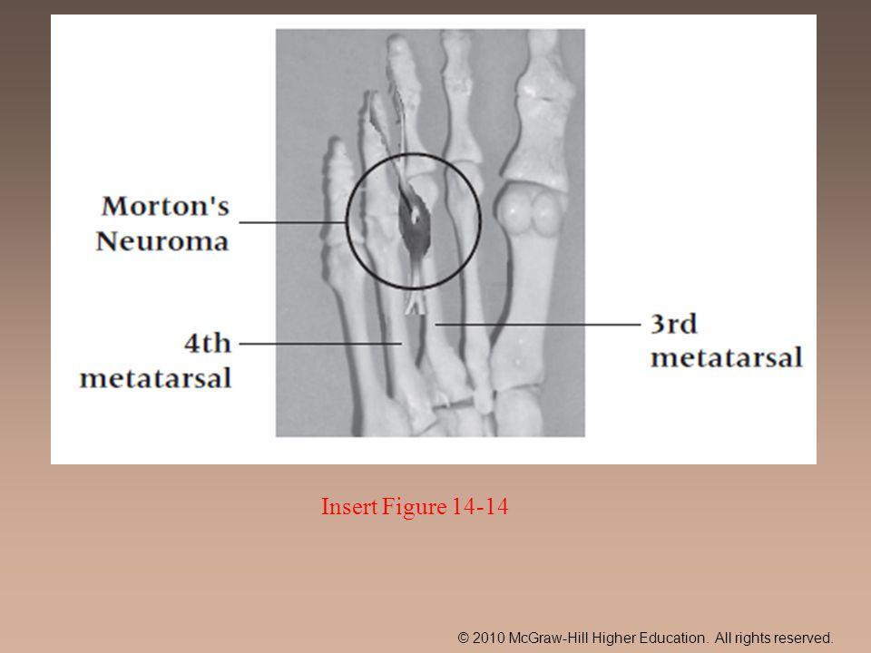 Insert Figure 14-14