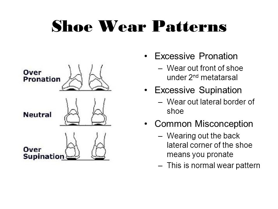 Shoe Wear Patterns Excessive Pronation Excessive Supination