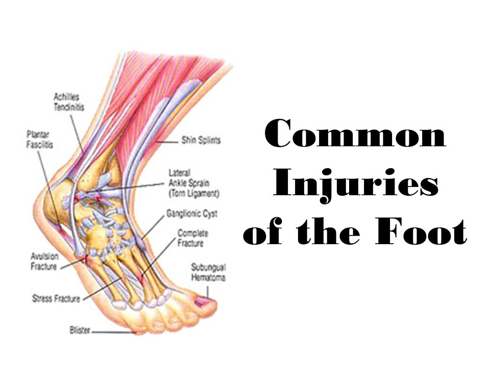 Common Injuries of the Foot