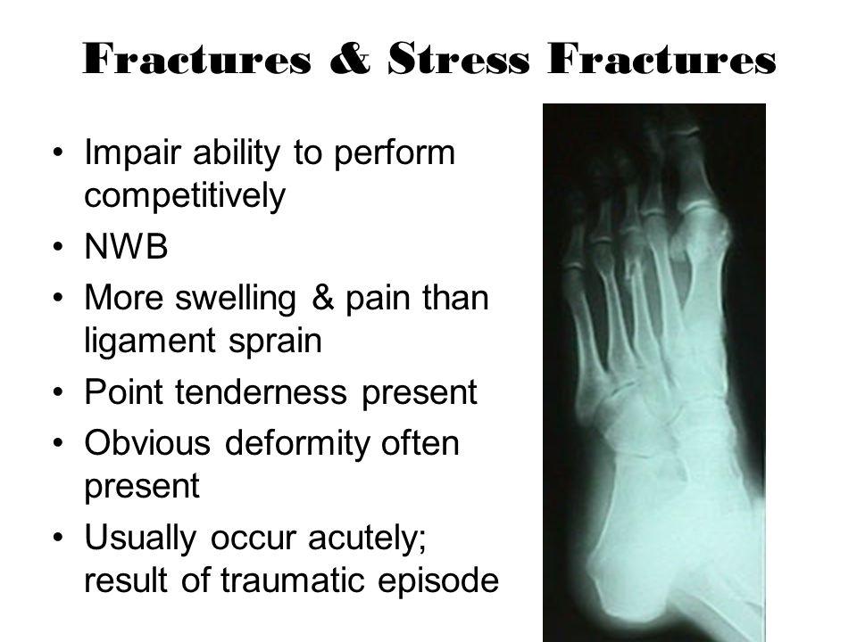 Fractures & Stress Fractures