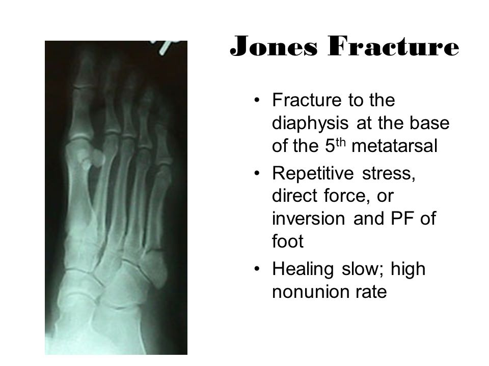 Jones Fracture Fracture to the diaphysis at the base of the 5th metatarsal. Repetitive stress, direct force, or inversion and PF of foot.