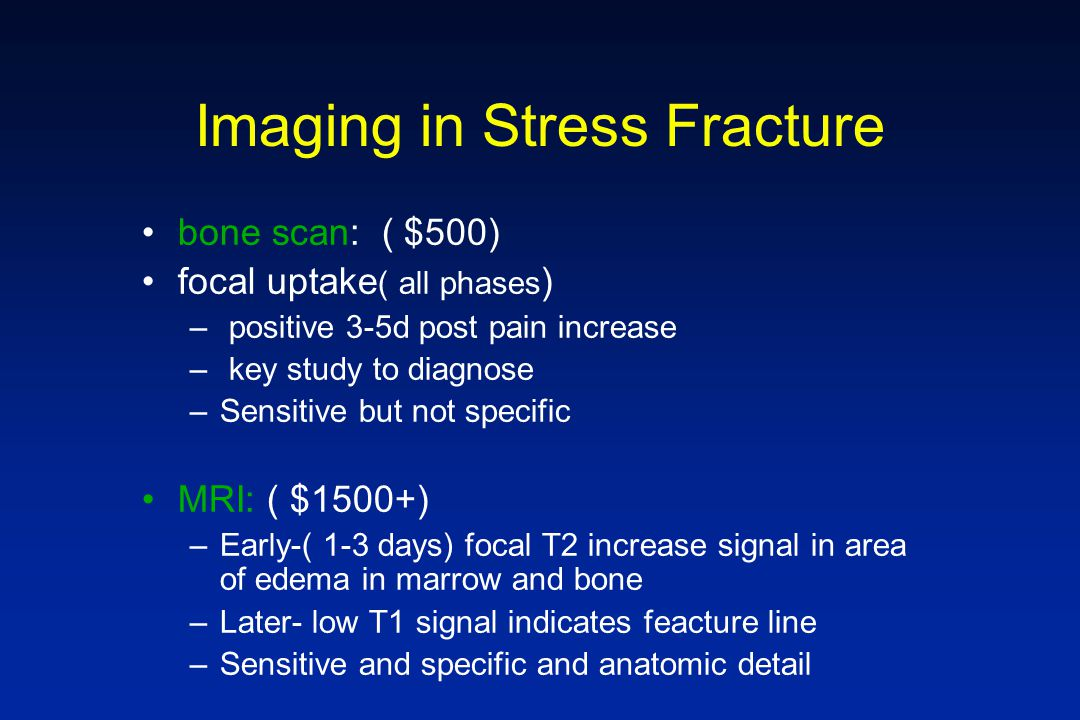 Imaging in Stress Fracture