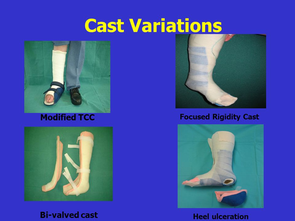 Cast Variations Modified TCC Bi-valved cast Focused Rigidity Cast