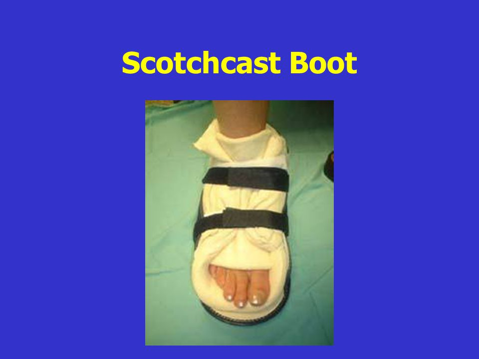 Scotchcast Boot