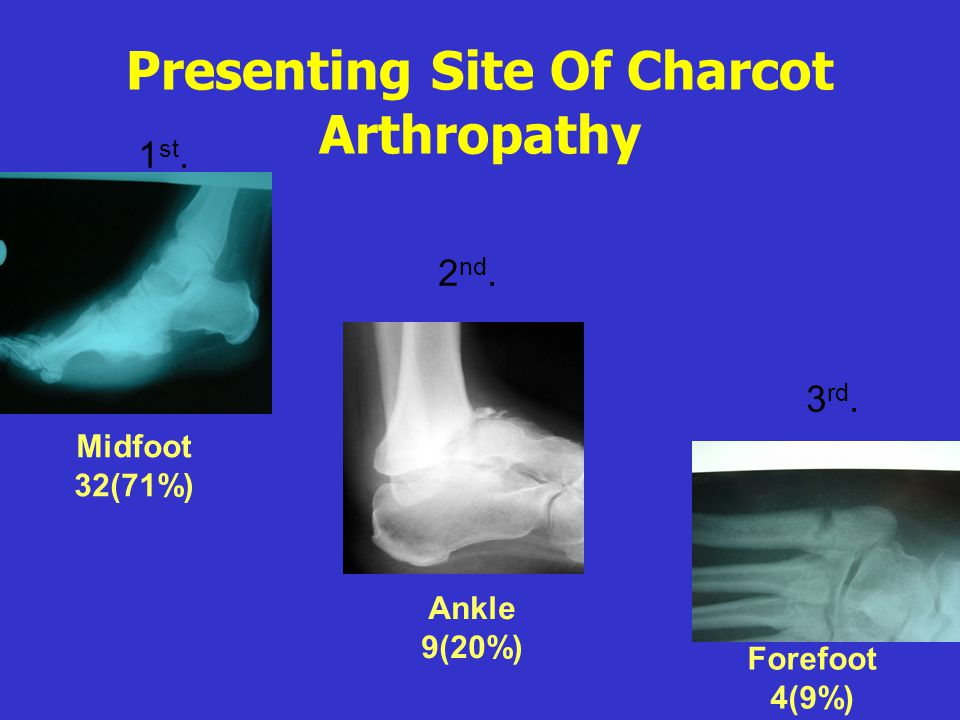 Presenting Site Of Charcot Arthropathy
