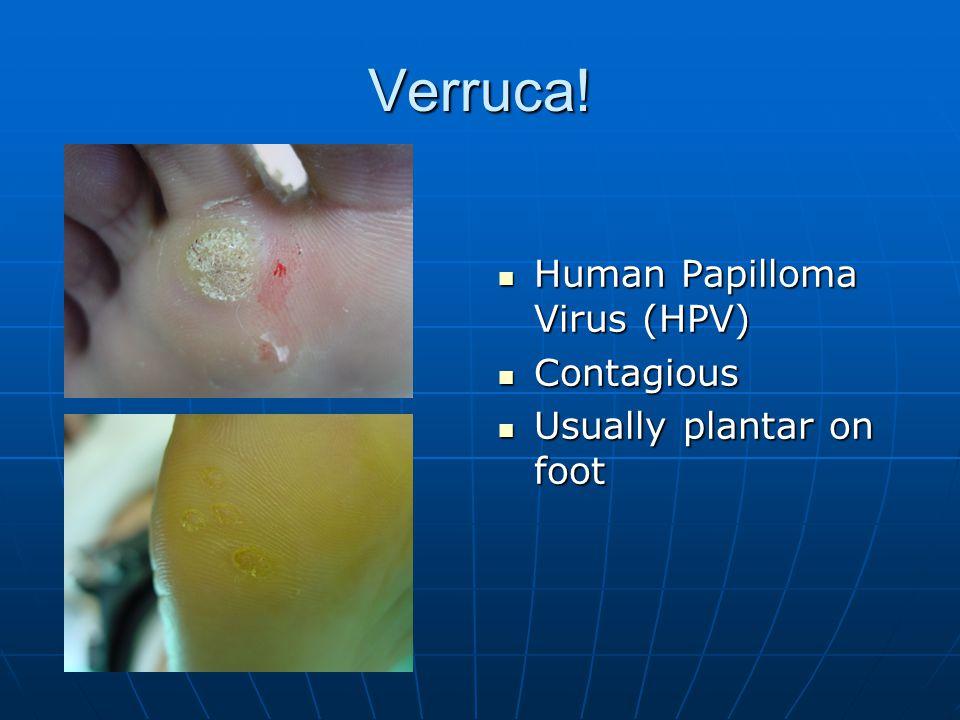 Verruca! Human Papilloma Virus (HPV) Contagious