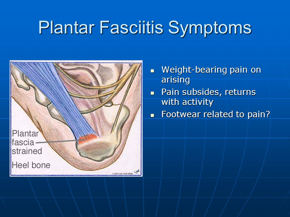 The symptoms and treatment of plantar fasciitis