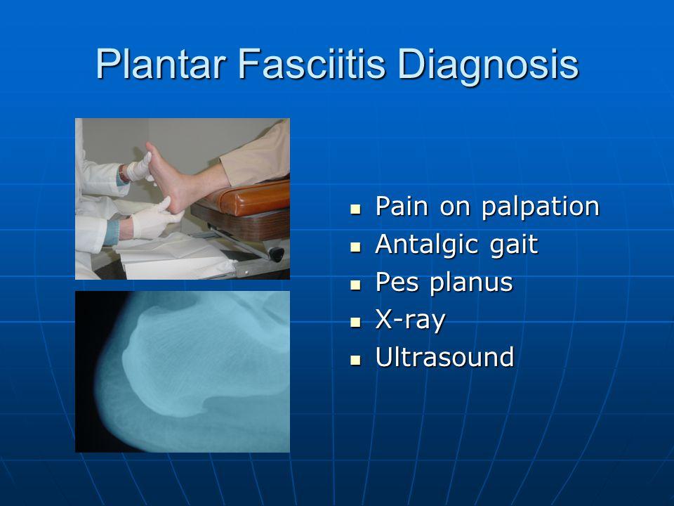 Plantar Fasciitis Diagnosis