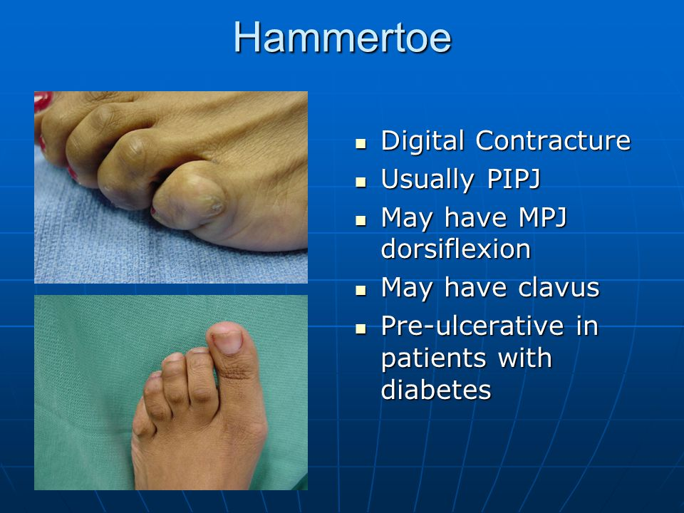 Hammertoe Digital Contracture Usually PIPJ May have MPJ dorsiflexion