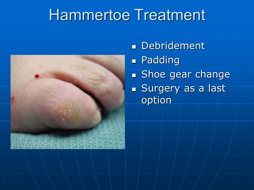 Hammertoe Treatment Debridement Padding Shoe gear change
