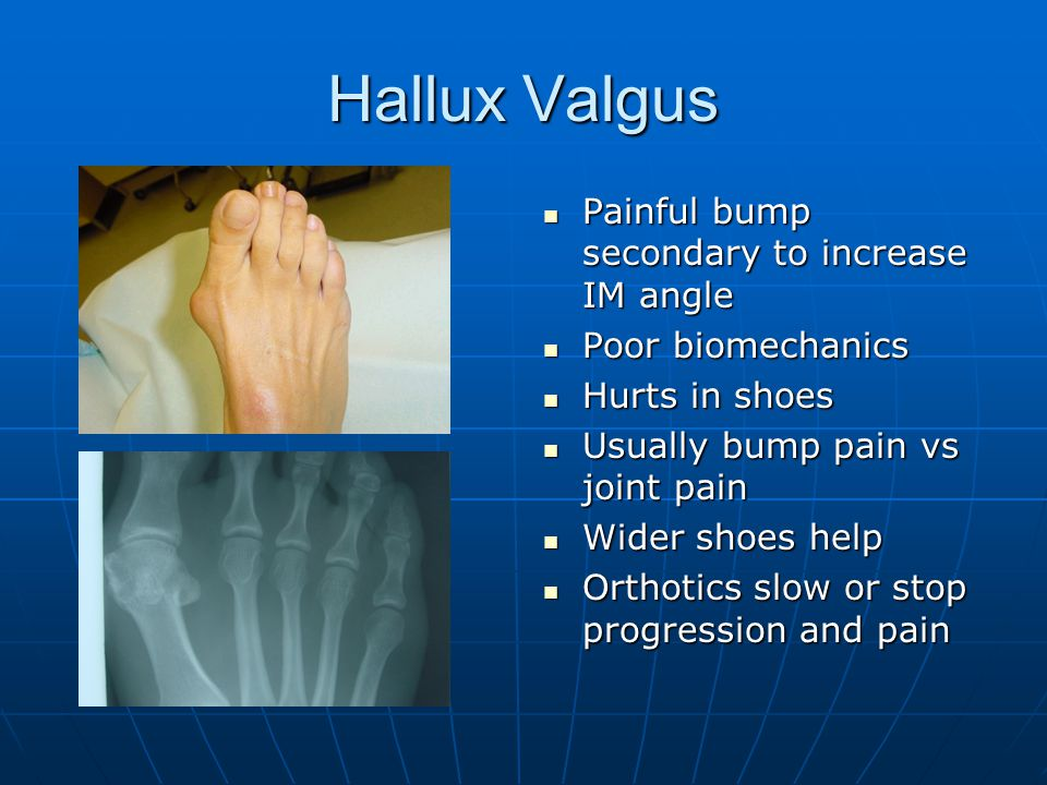 Hallux Valgus Painful bump secondary to increase IM angle