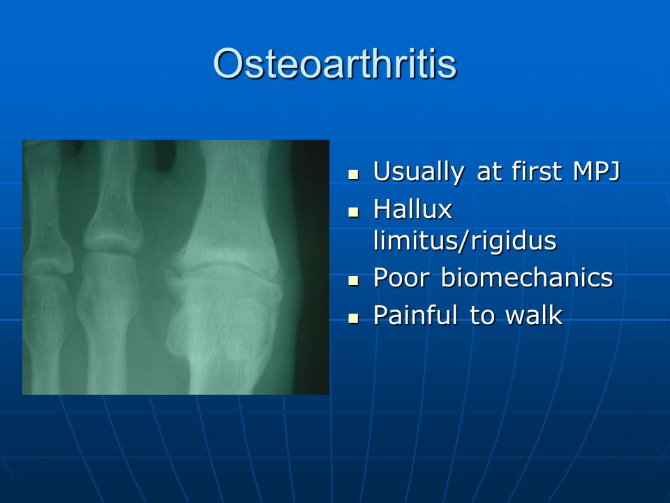 Osteoarthritis Usually at first MPJ Hallux limitus/rigidus