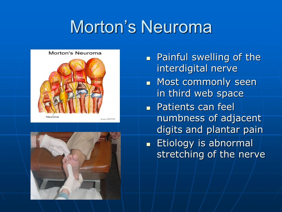 Morton's Neuroma Painful swelling of the interdigital nerve