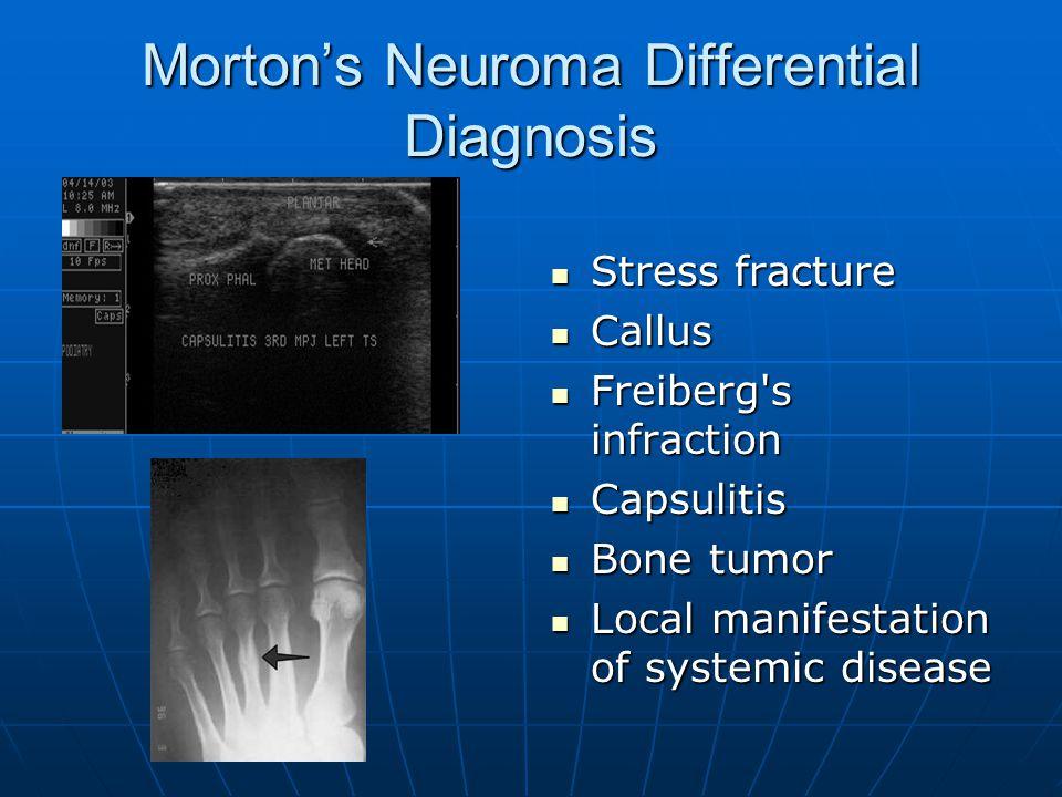 Morton's Neuroma Differential Diagnosis