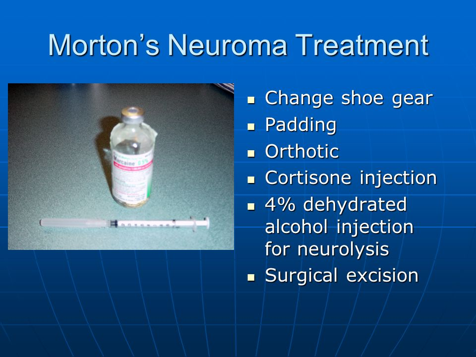 Diagnosis and Treatment of Common Foot Conditions - ppt