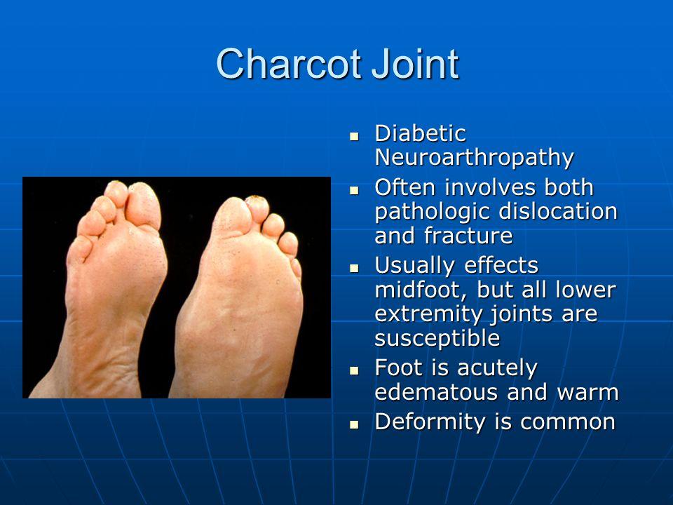 Charcot Joint Diabetic Neuroarthropathy