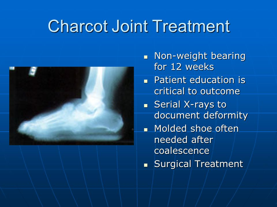 Charcot Joint Treatment