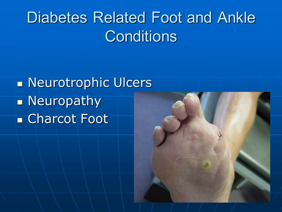 Diabetes Related Foot and Ankle Conditions