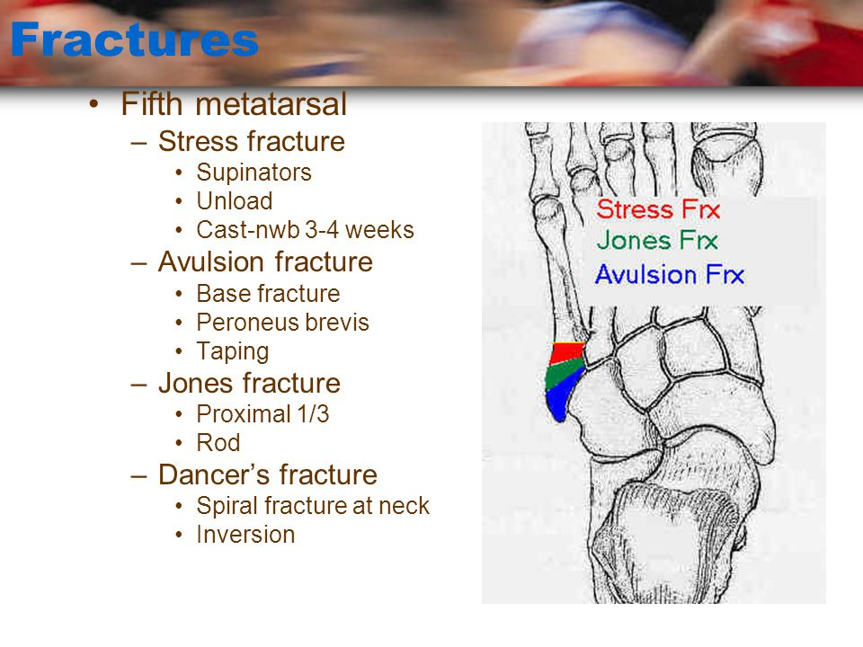 Fractures Fifth metatarsal Stress fracture Avulsion fracture