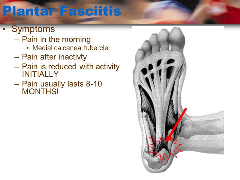 Plantar Fasciitis Symptoms Pain in the morning Pain after inactivty