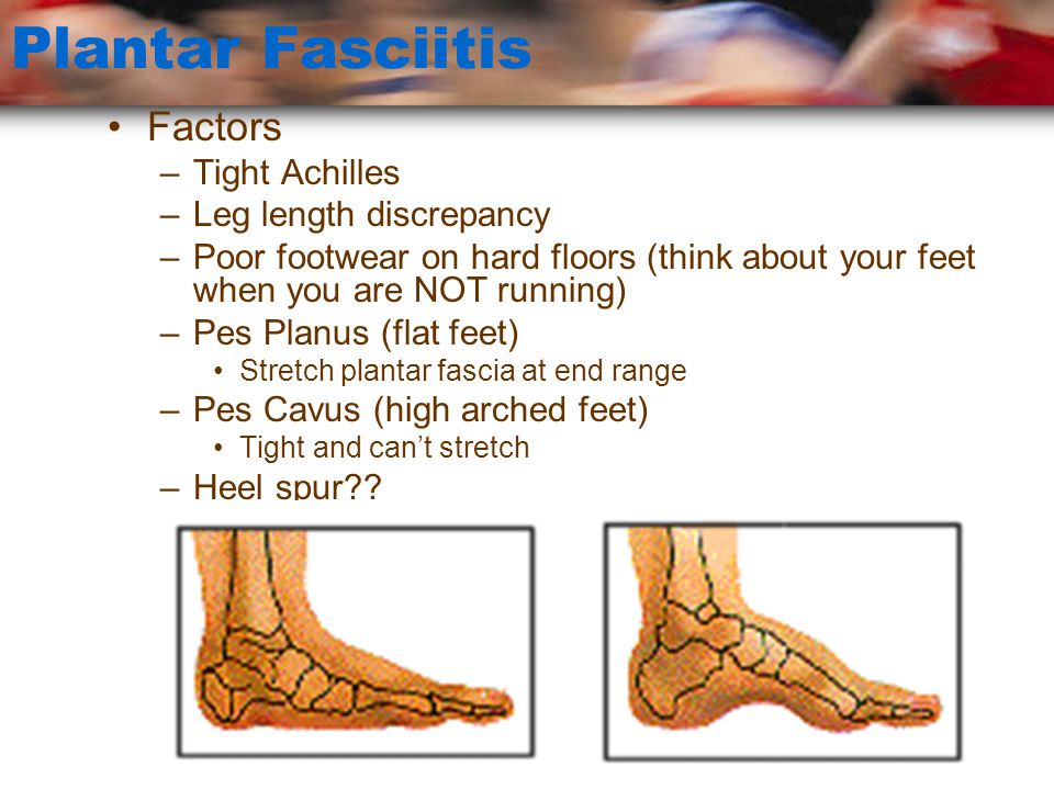 Plantar Fasciitis Factors Tight Achilles Leg length discrepancy