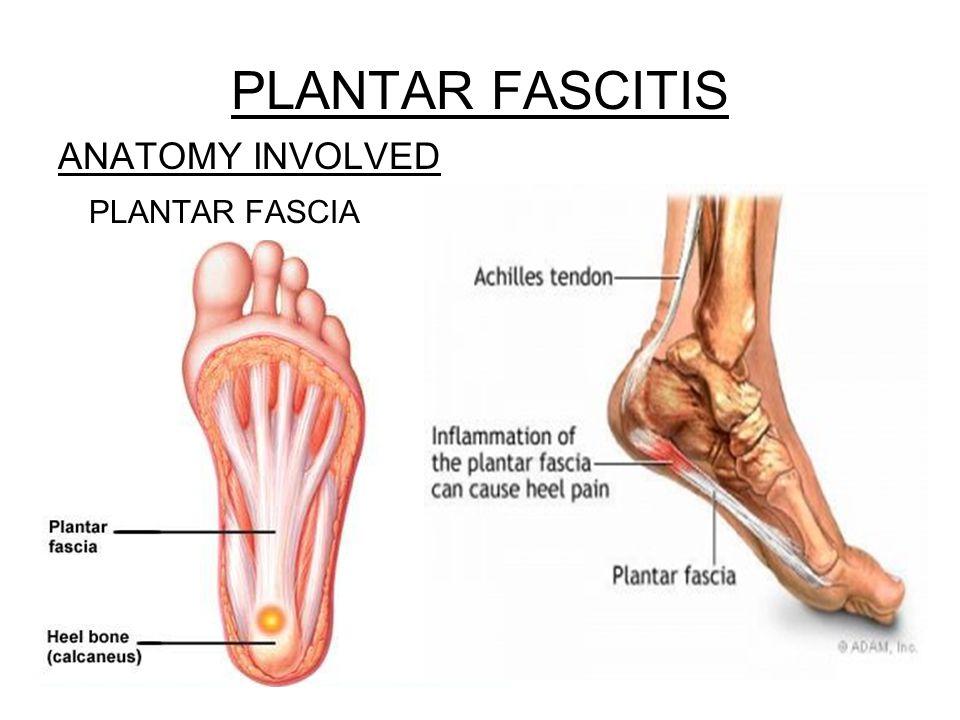 PLANTAR FASCITIS ANATOMY INVOLVED PLANTAR FASCIA