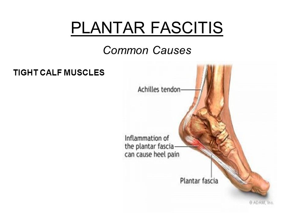 PLANTAR FASCITIS Common Causes TIGHT CALF MUSCLES