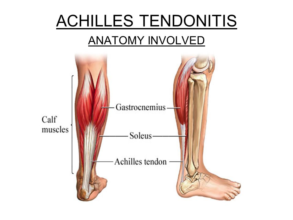 ACHILLES TENDONITIS ANATOMY INVOLVED