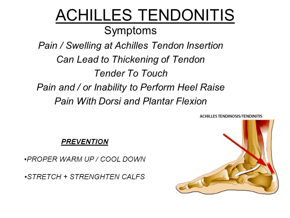 ACHILLES TENDONITIS Symptoms