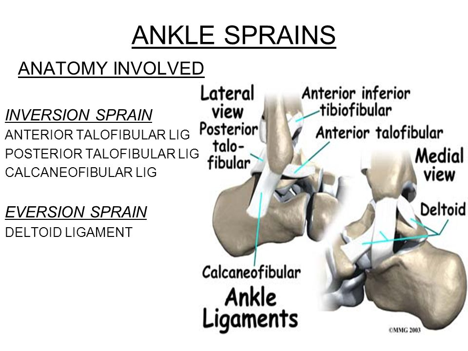ANKLE SPRAINS ANATOMY INVOLVED INVERSION SPRAIN EVERSION SPRAIN