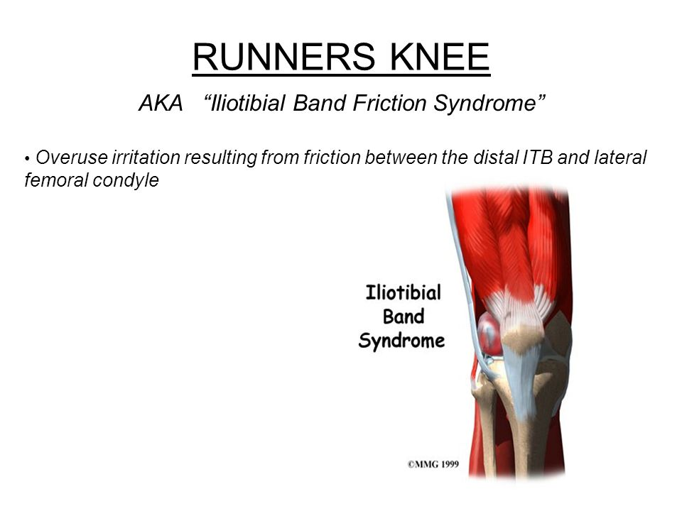 AKA Iliotibial Band Friction Syndrome