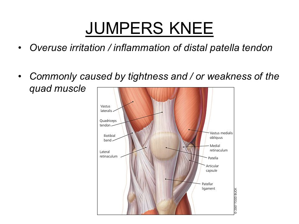 JUMPERS KNEE Overuse irritation / inflammation of distal patella tendon.