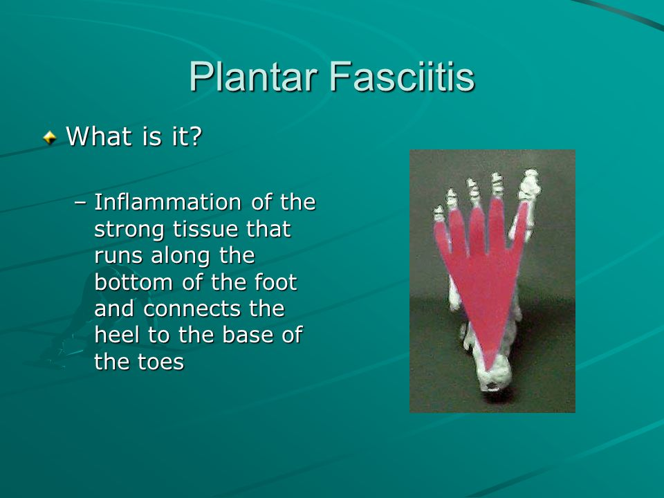 Plantar Fasciitis What is it