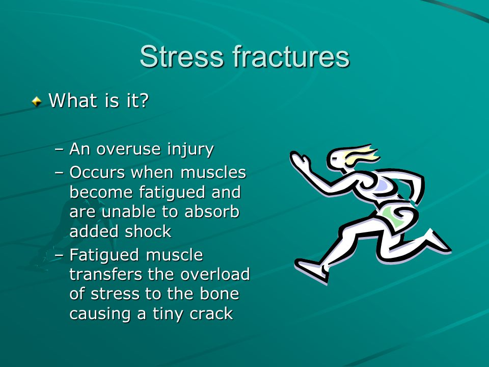 Stress fractures What is it An overuse injury