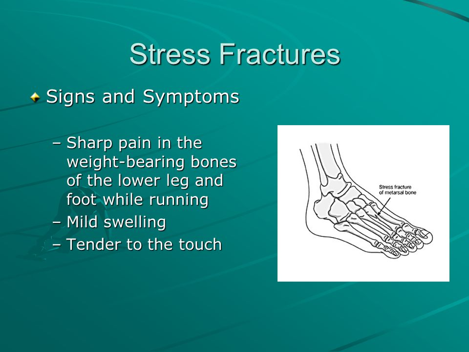 Stress Fractures Signs and Symptoms