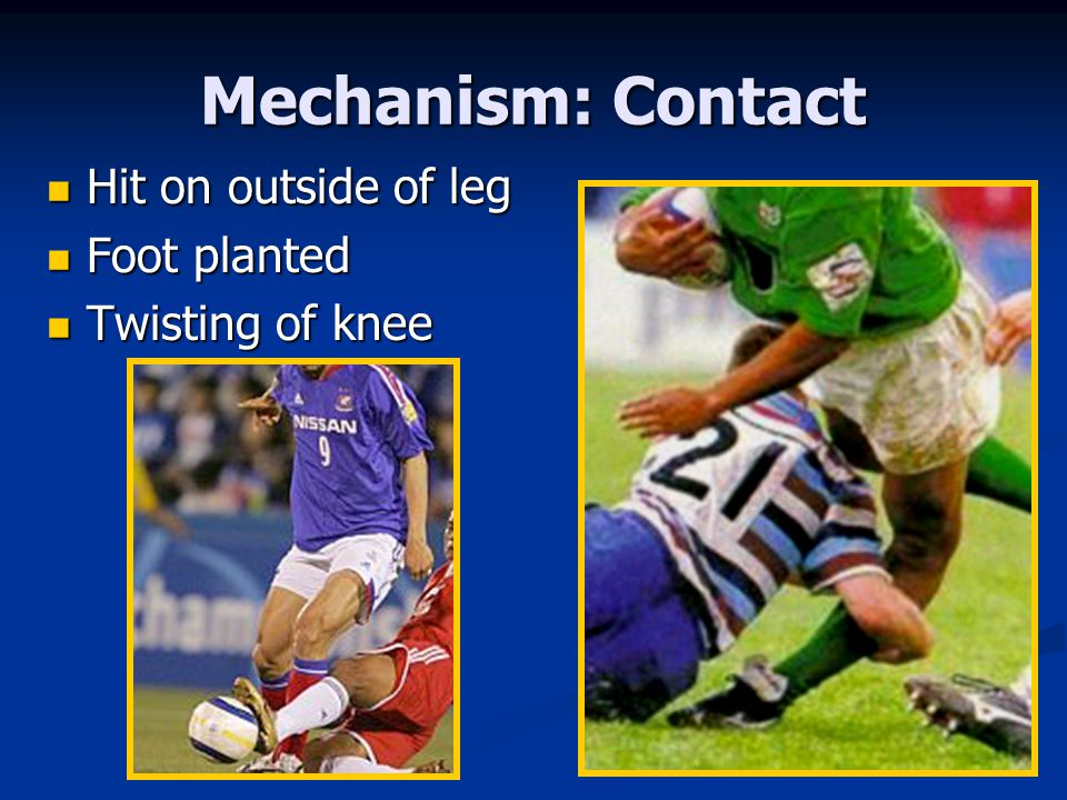 Mechanism: Contact Hit on outside of leg Foot planted Twisting of knee