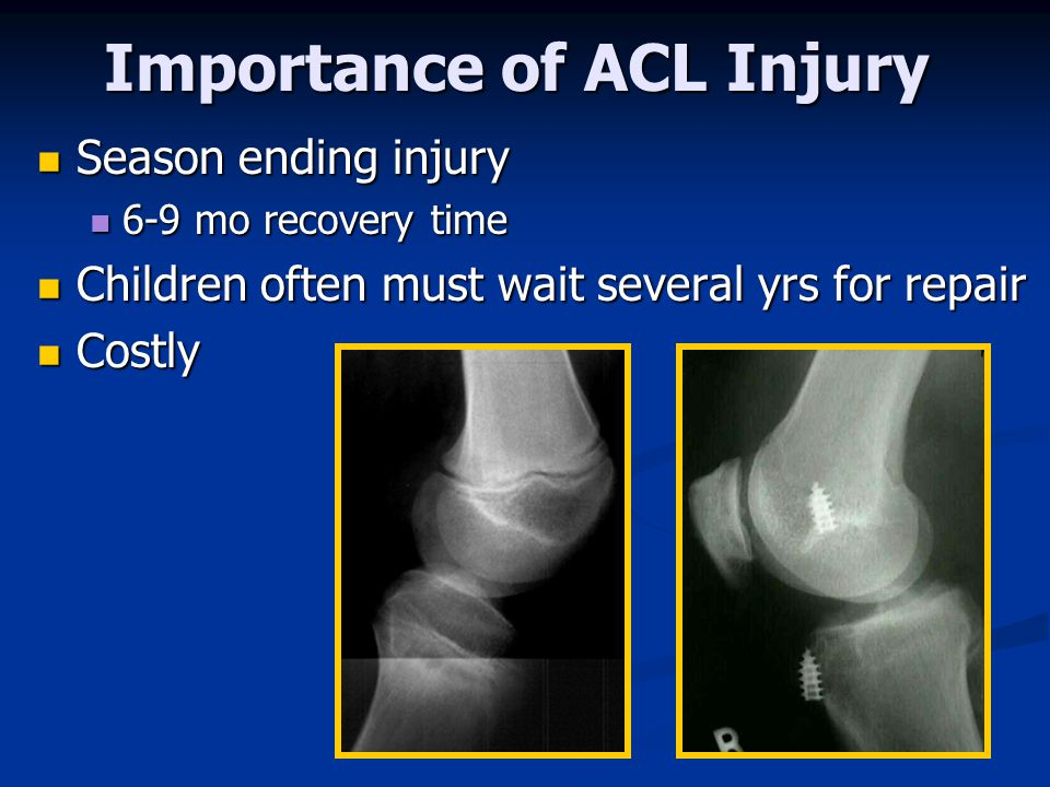 Importance of ACL Injury