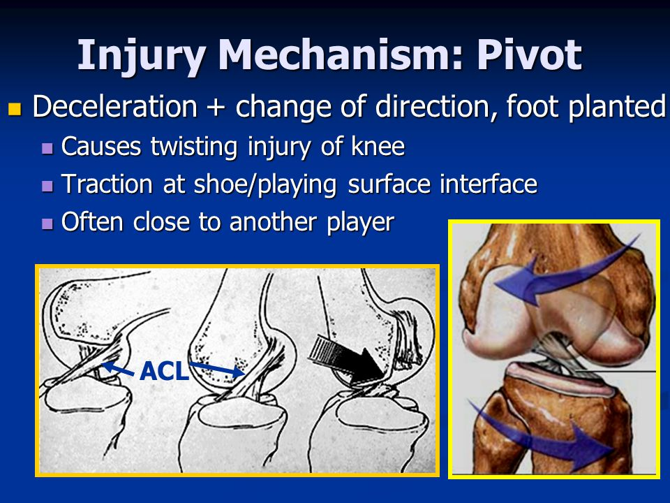 Injury Mechanism: Pivot
