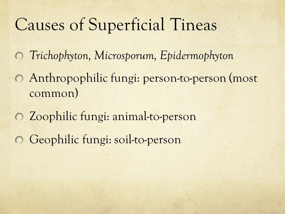 Causes of Superficial Tineas