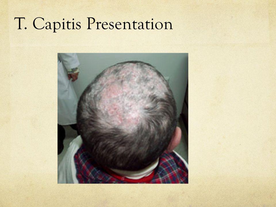 T. Capitis Presentation