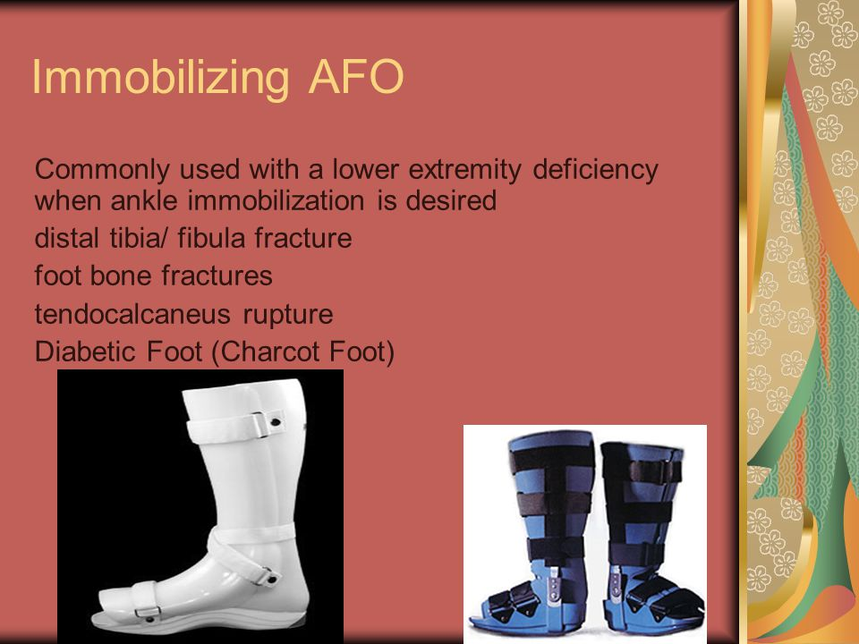 Immobilizing AFO Commonly used with a lower extremity deficiency when ankle immobilization is desired.