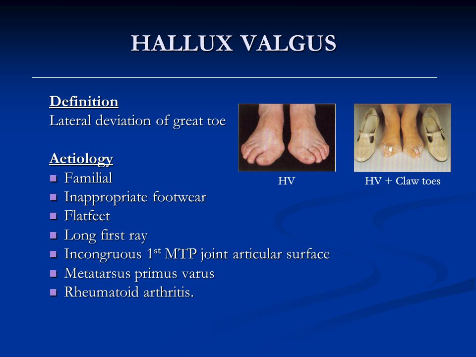HALLUX VALGUS Definition Lateral deviation of great toe Aetiology